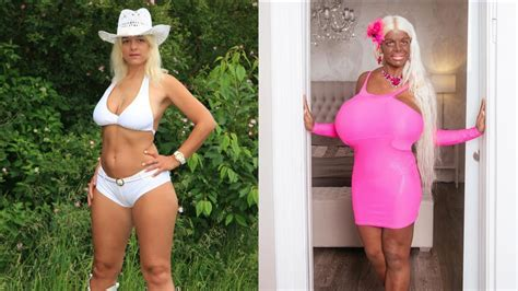 Woman Uses Injections to Change Her Skin Color | The